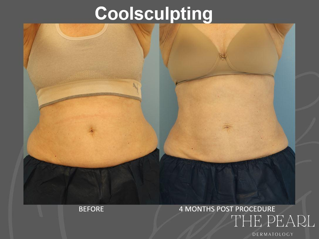 Coolsculpting Before.After